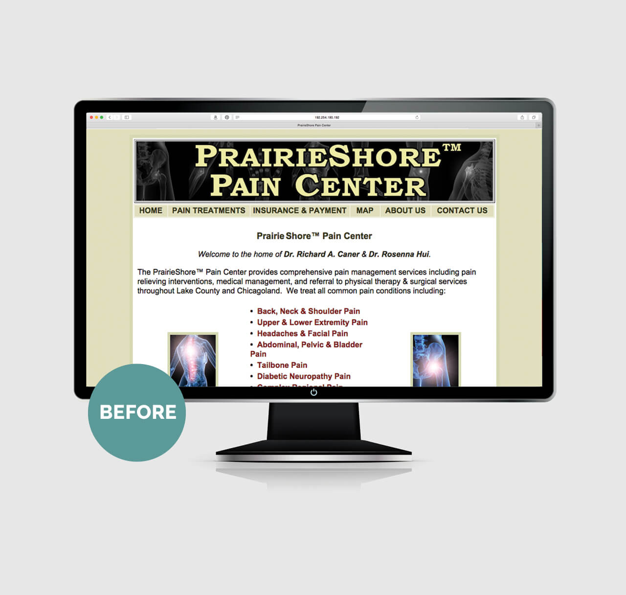 PrairieShore before image